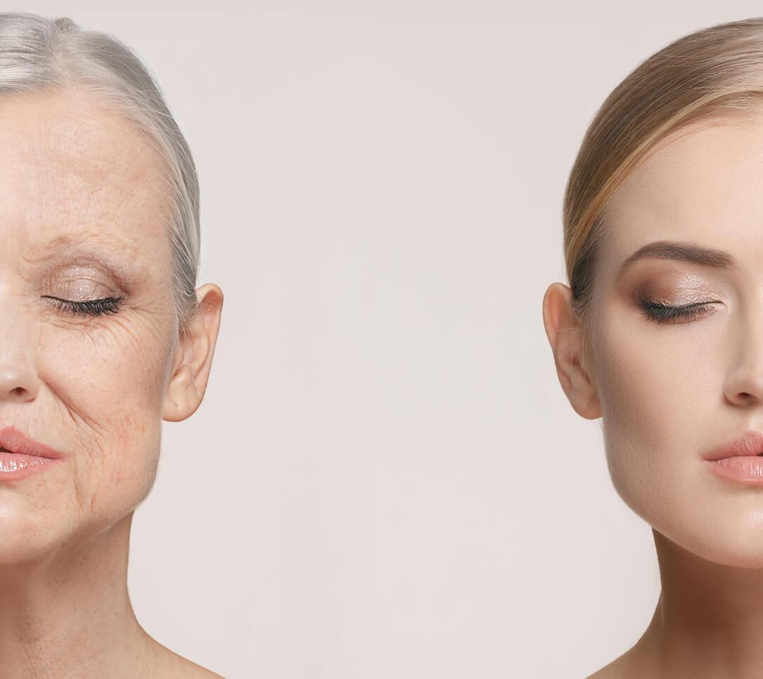 老化,加齢